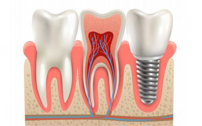 Time To Consider Same Day Dental Implants
