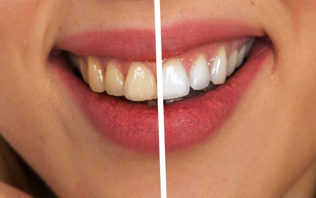 Tooth Sensitivity And Whitening Options