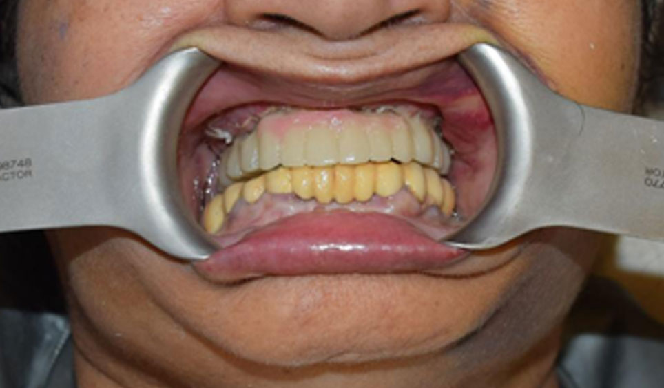 Implants Placed With HIPC Crowns