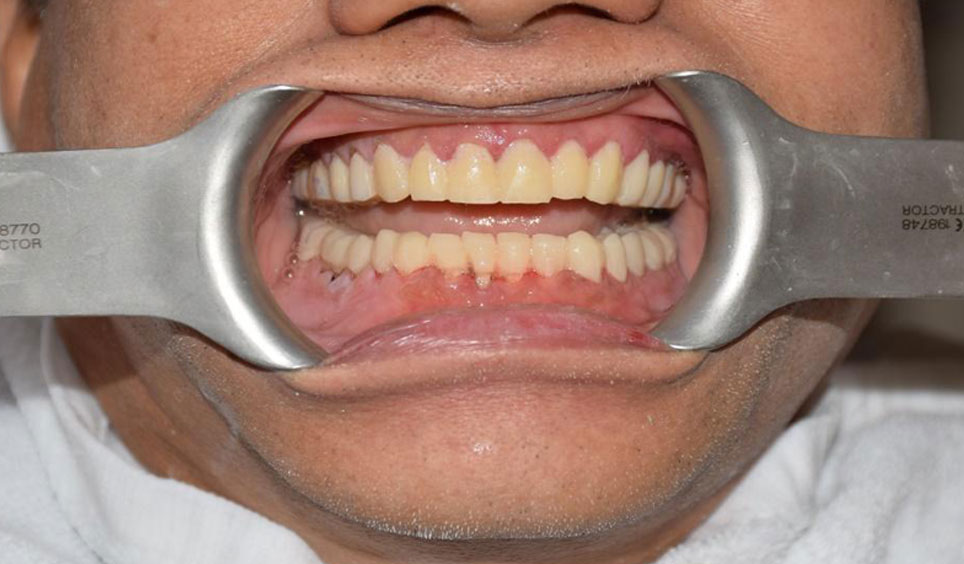 Restore Broken, Infected Or Chipped Teeth On Same Day