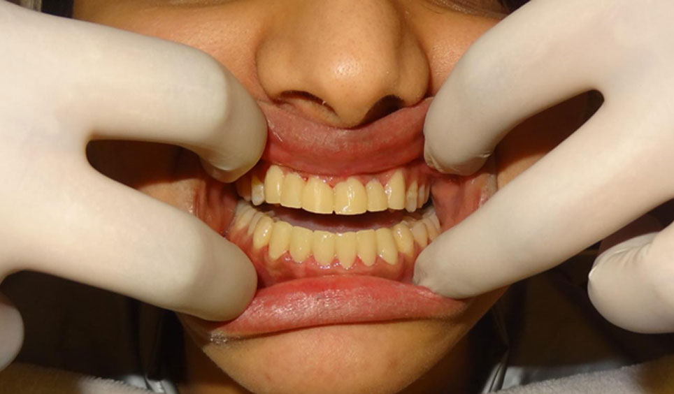 Best Alternate To Braces For Fixing Crooked Teeth