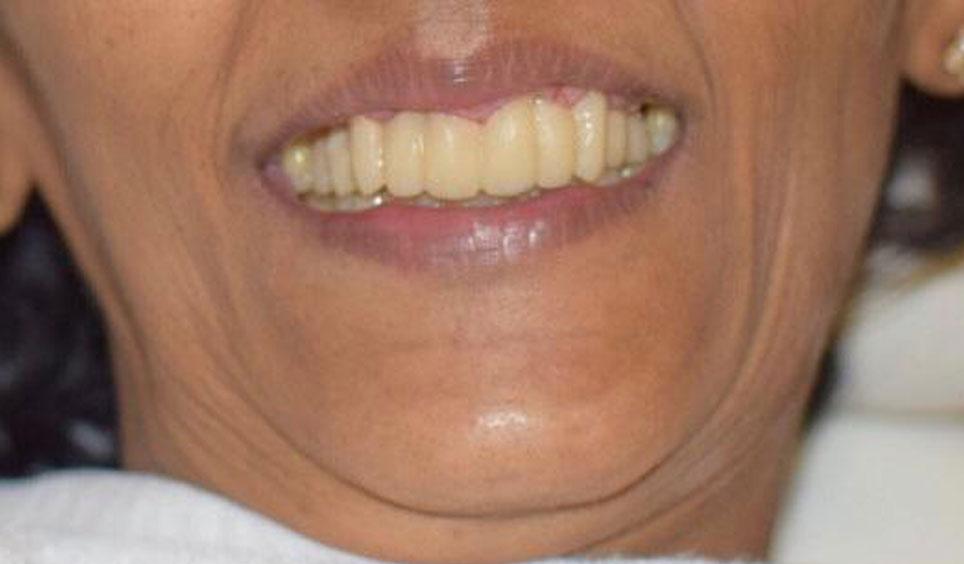 Restoration Of Mobile, Missing Or Misaligned Teeth