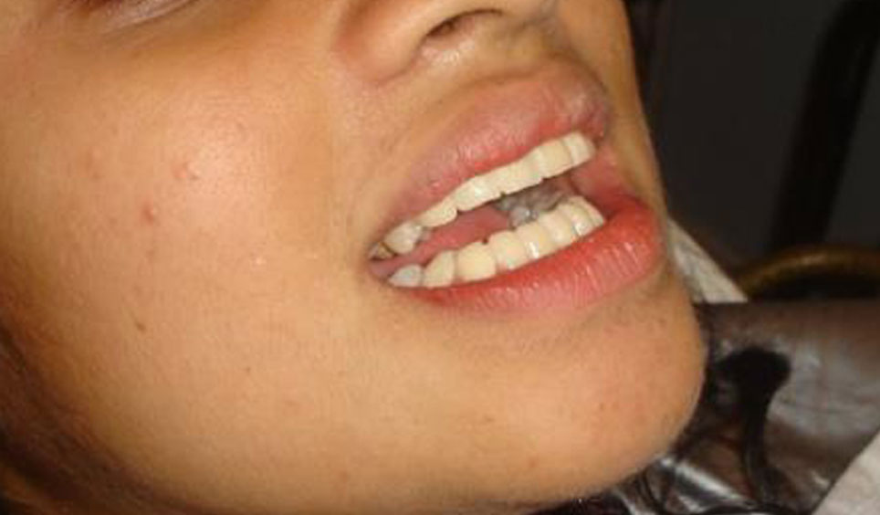 Cosmetic Correction For Protruding Teeth In Few Hours