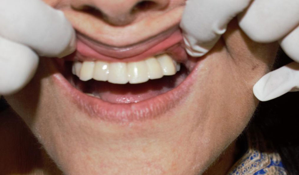 Replace Missing Teeth With Implants In One Day