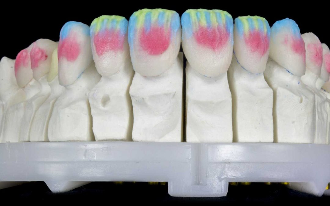 Which Dental Prosthesis Is Best For You