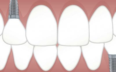 What Are The Benefits Of Dental Implants